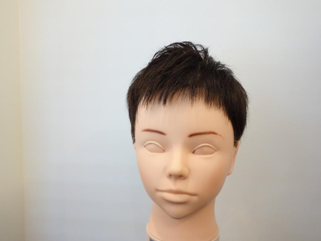 M字型の薄毛4