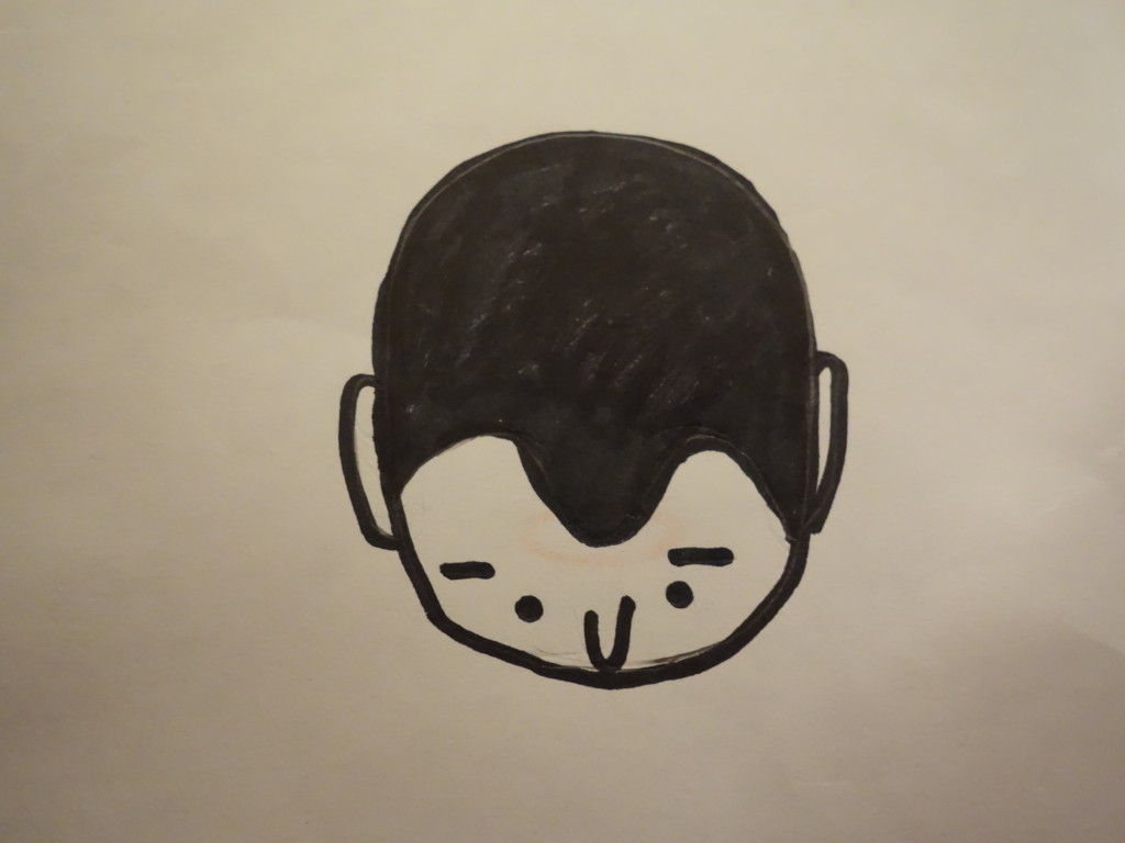 M字型の薄毛7