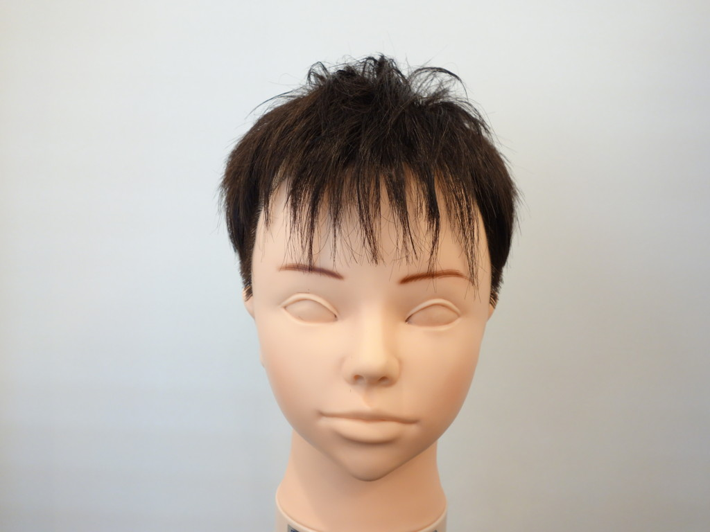 M字型の薄毛3