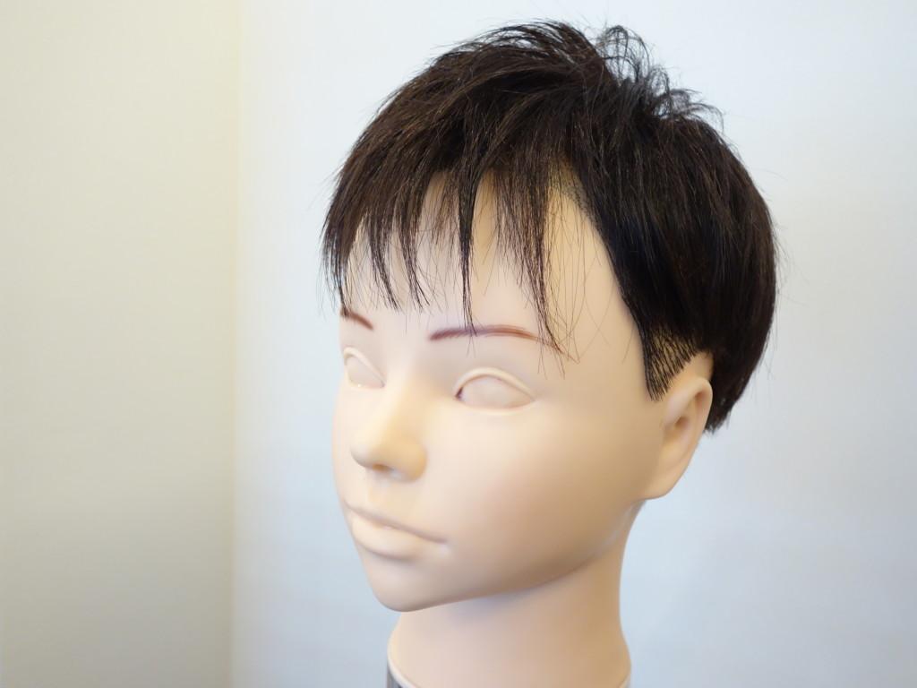 M字型の薄毛1