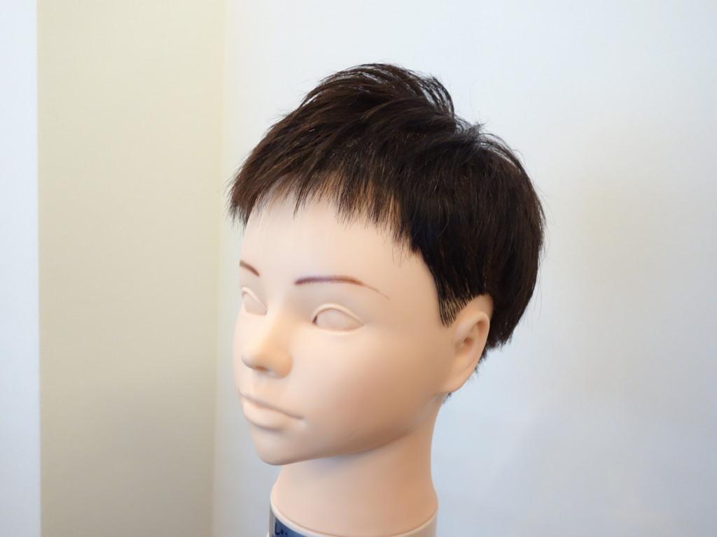 M字型の薄毛2