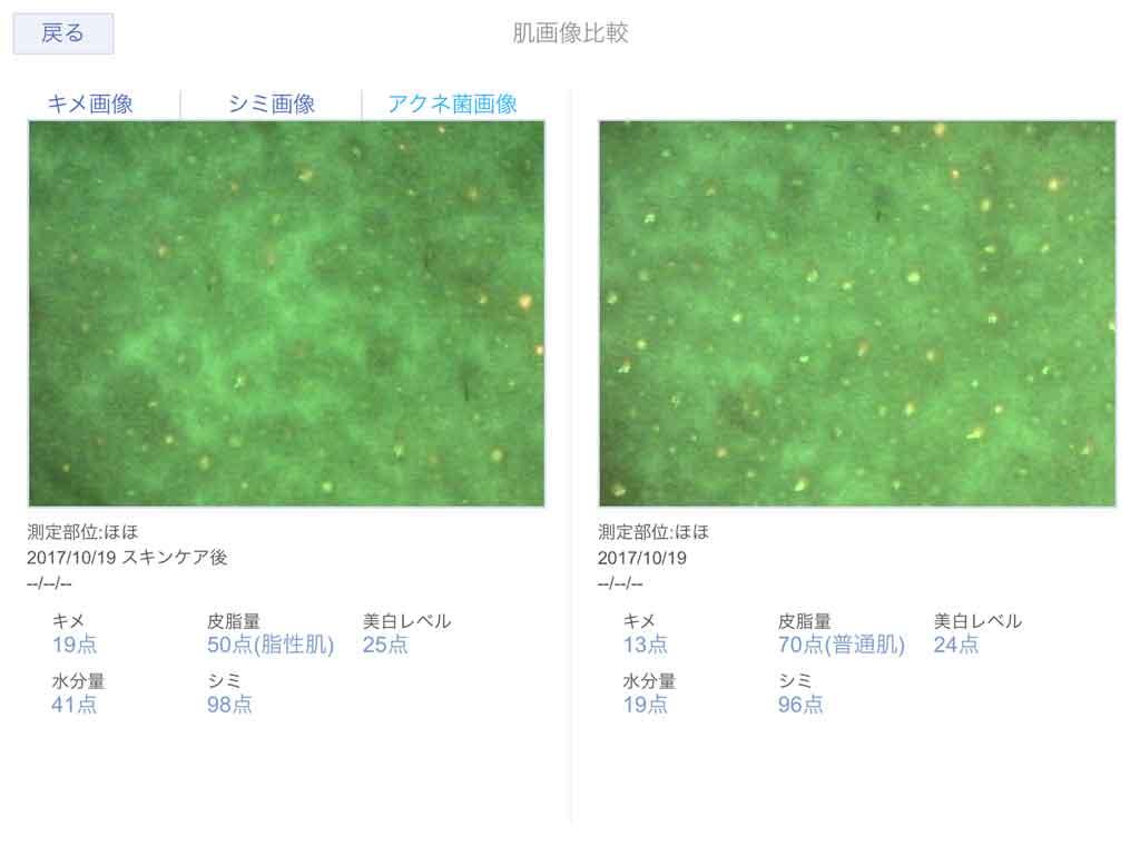 肌診断機アクネ菌の画像