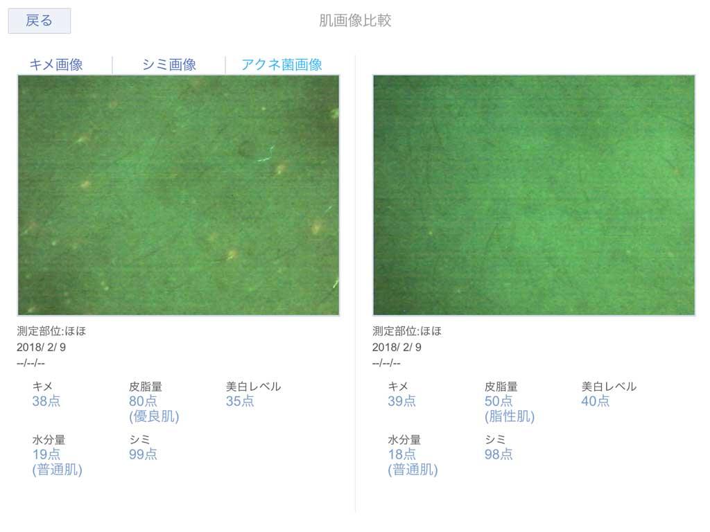 肌診断機のアクネ菌の画像